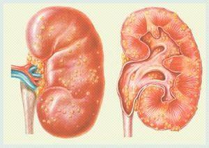 infezioni urinarie - pielonefrite