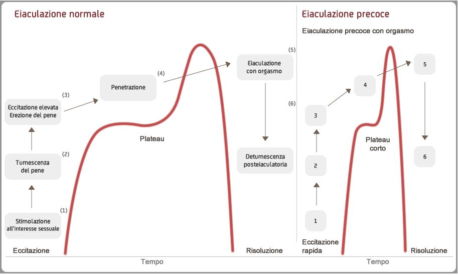 eiaculazione della prostatite (infiammazione della prostata)